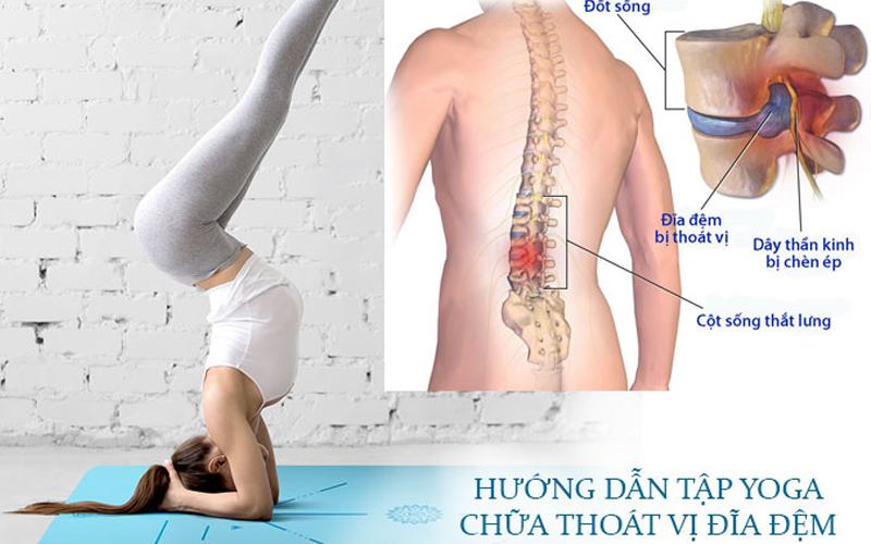 Bài tập yoga chữa thoát vị đĩa đệm
